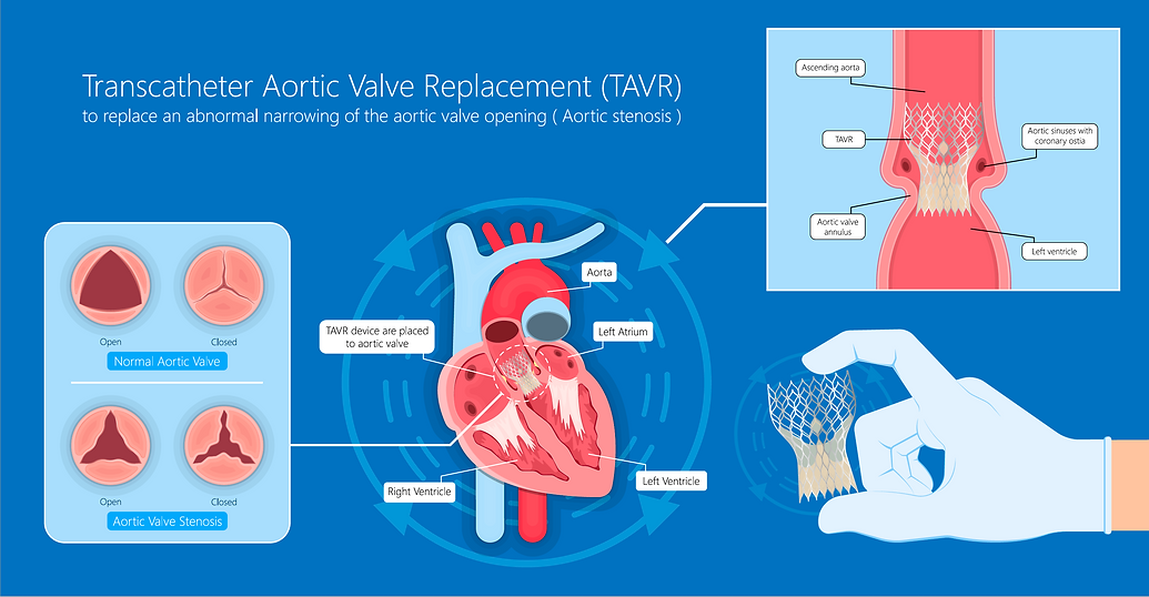 TAVI (aortic valve replacement, non-surg