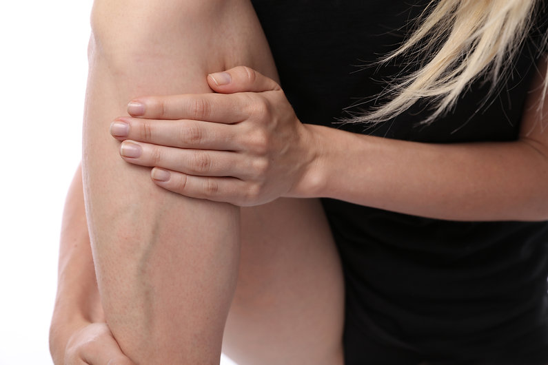 Painful varicose and spider veins on fem