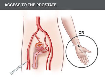 1-Cartoon-endovascular-access-to-prostat