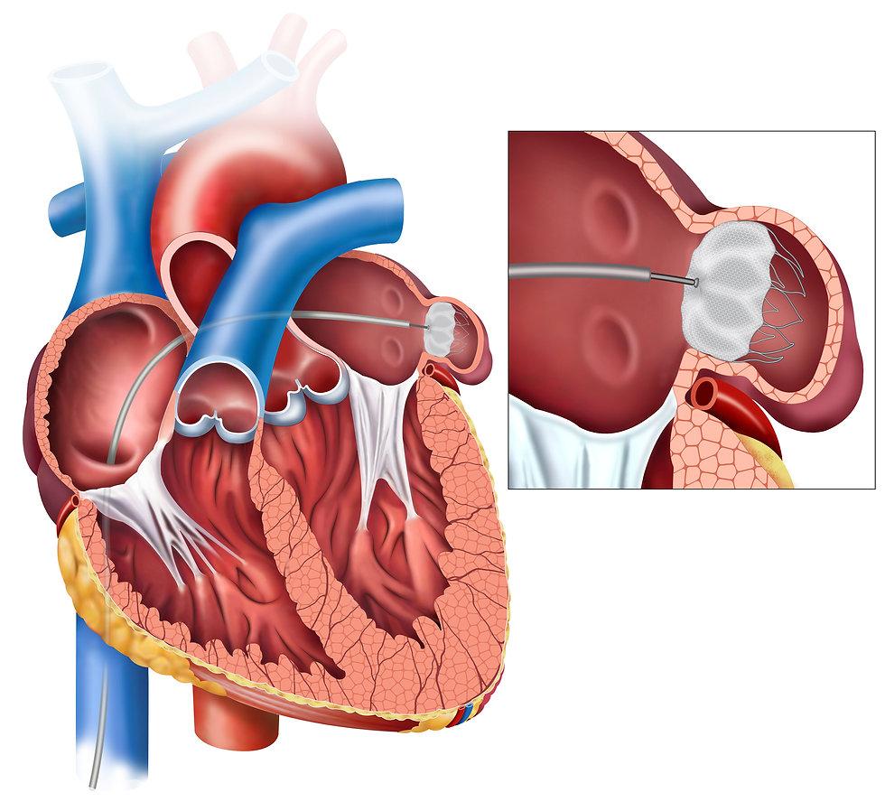 Left atrial appendix closure and angiopl