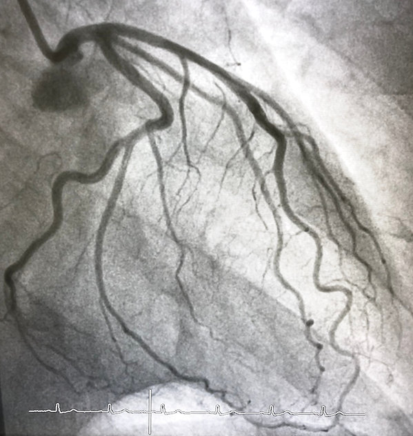 Coronary angiogram of left coronary arte