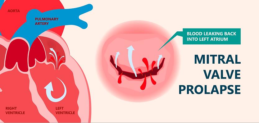 Mitral valve insufficiency condition