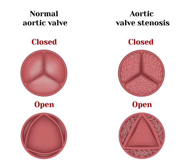 Aortic%20valve%20stenosis%20and%20insuff