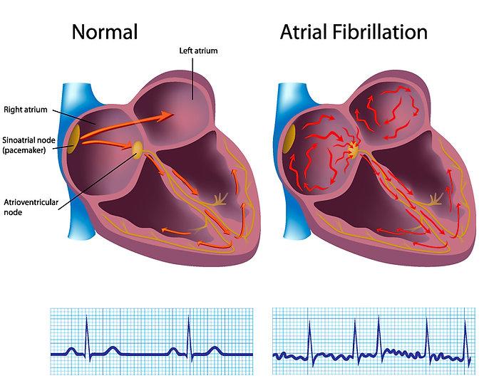 Atrial fibrillation condition