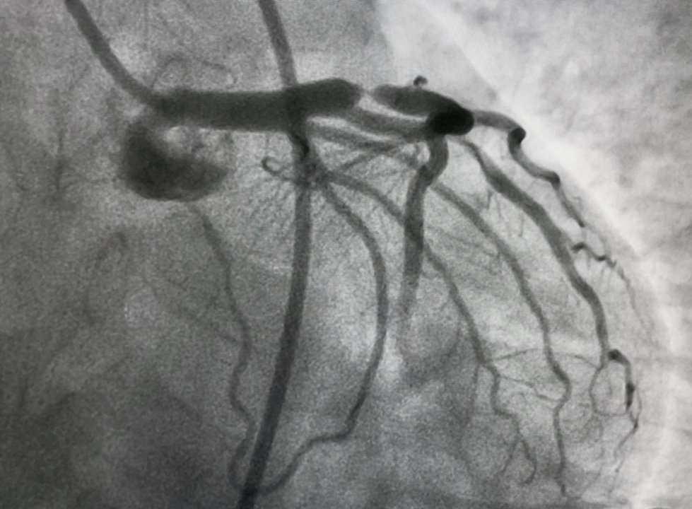 Coronary total occlusion CTO treatment