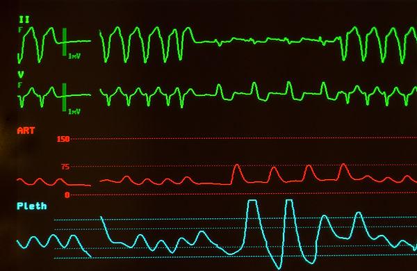 Ventricular tachycardia condition