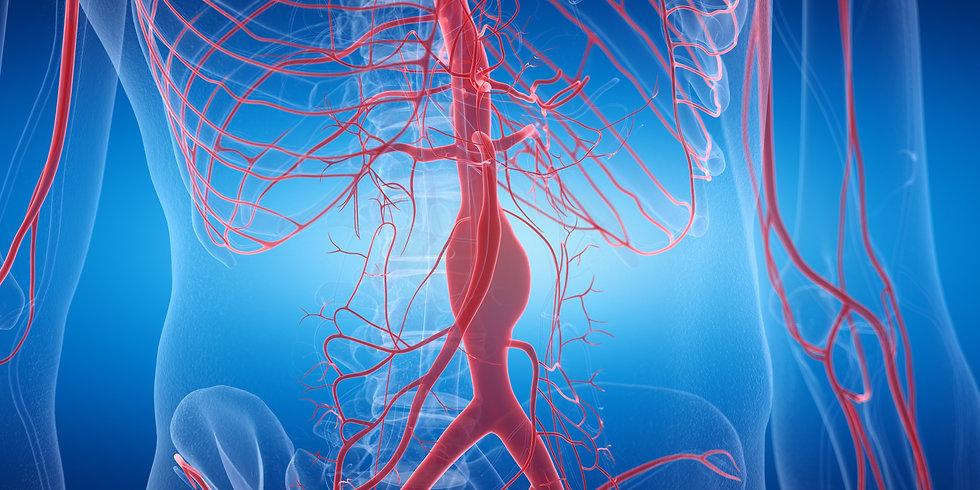 Aortic aneurysm condition (abdominal)
