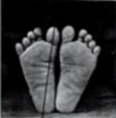 Фиг 1. Вид на подошву стоп негритоса, показывающий прямоту и разведение пальцев. Поперечные складки кожи подошвы. Широчайшая часть стопы на уровне пальцев. Длинная ось большого пальца, продолженная кзади, попадает в центр пятки.  