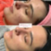 Acne treatment in Sheffield