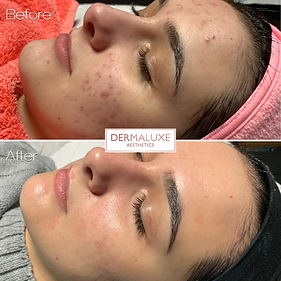 Acne treatment in Sheffield