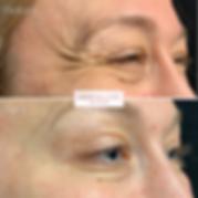 IMG_7029_eZy Watermark_23-04-2019_11-24-