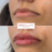 lip fillers sheffield