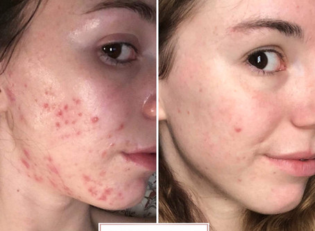 Mollie's Acne Journey : Treating & Managing Hormonal Cystic Acne