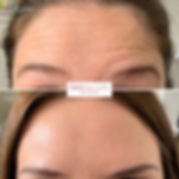 Botox Injections in Sheffield