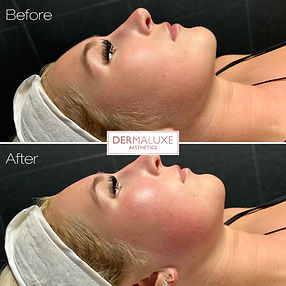 Dermaplaning Facial in Sheffield