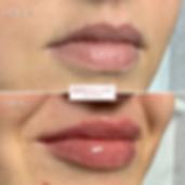 lip fillers in sheffield