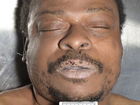 Black male found February 10, 2020 in Chicago