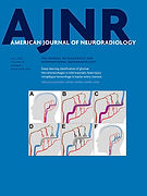 Quantitative Analysis of Spinal Canal Areas in the Lumbar Spine
