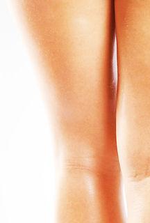 imagem de pernas femininas, de costas, para ilustrar o tratamento de varizes