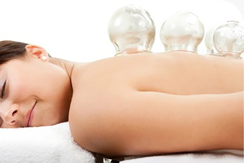 Cupping 25 minutes