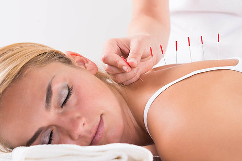 Gift Certificate- 4 Sessions Acupuncture- Save $150