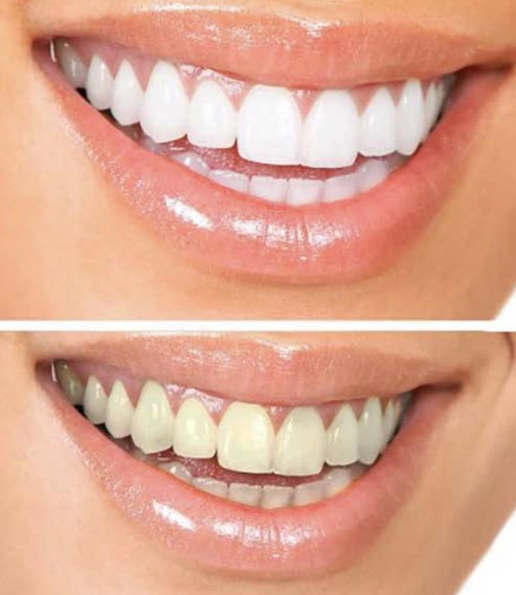 Glow Teeth Whitening