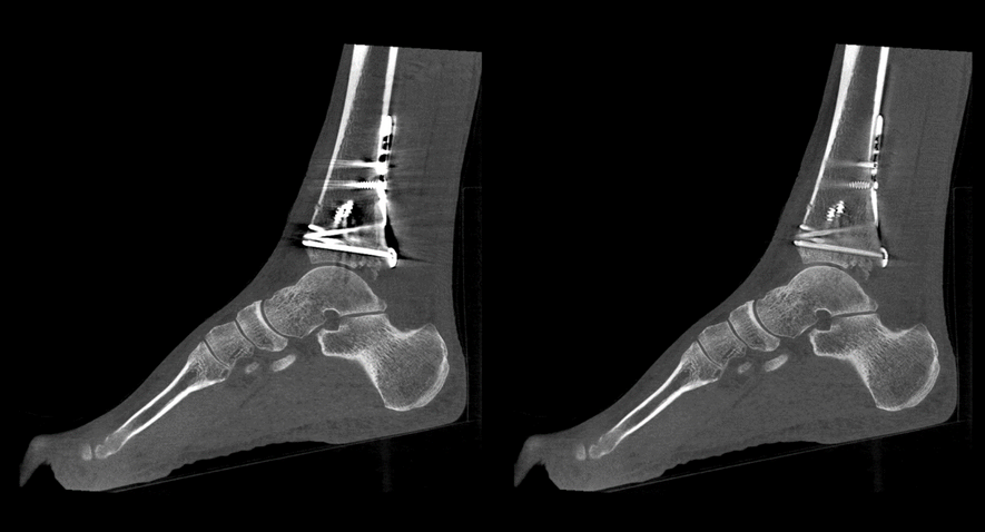 Carestream_Ankle Uncorrected-with CMAR2.