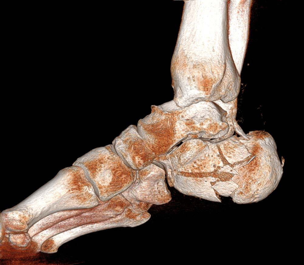 R0104 3D Rendered Calcaneous Fx.JPG