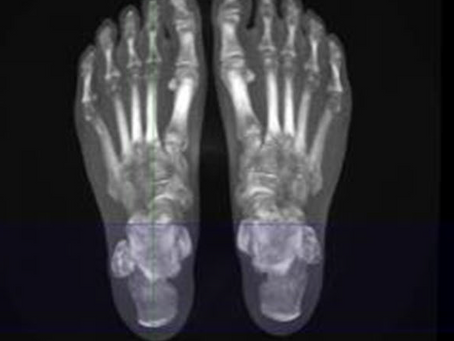 WBCT Article Published in the International Journal of Computer Assisted Radiology and Surgery