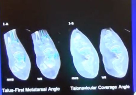 Extremity Reconstruction's Game Changer: Weight-Bearing CT Imaging