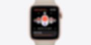telekom-apple-watch-series-5-zyklus.png