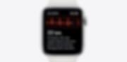 telekom-apple-watch-series-5-herzfrequen