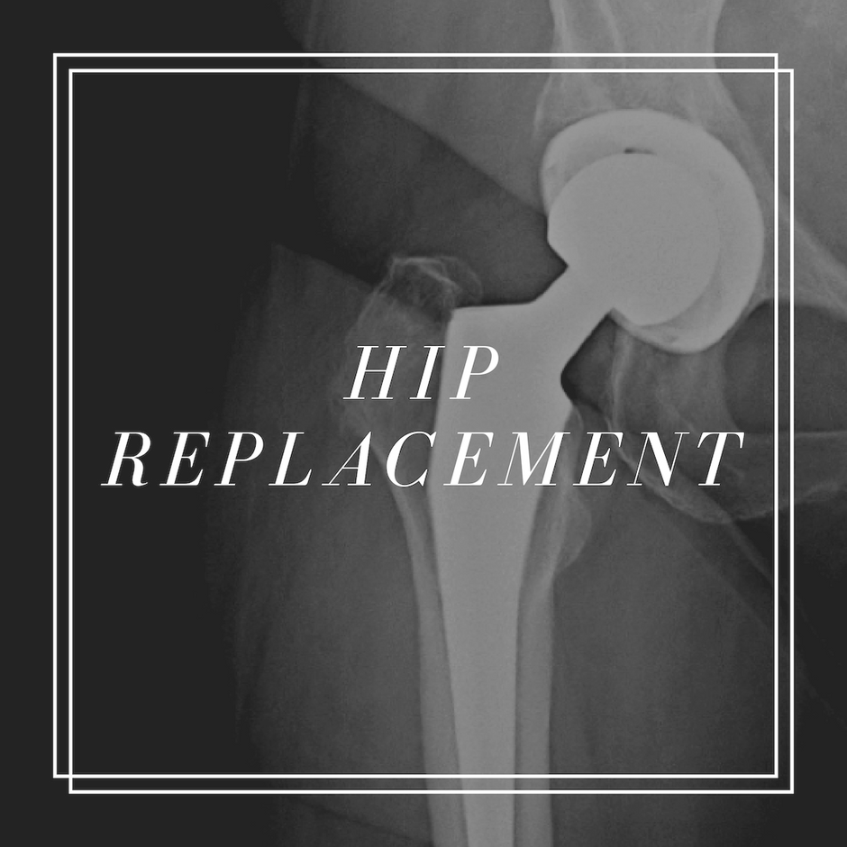 Frequently Asked Questions about Hip Replacements