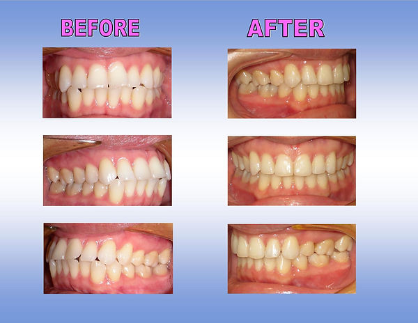 before-after-braces-dr-ting-ortho-fast-b