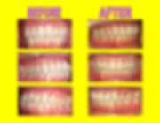 Dr. Richard Ting Orthodontics before and after braces orthodontic treatment. Invsalign, Herbst Appliance, MSE, TAD, teeth, airway and functional orthodonics, Ting ortho, Rancho Santa Margarita Orthodontist, Ladera Ranch, Denist, Dental, Rancho Santa Margarita, Orange County,
