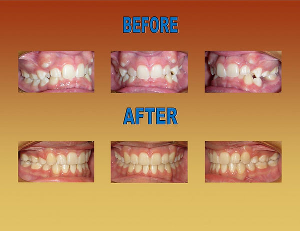 before-after-braces-ortho-1-rsm-mission-
