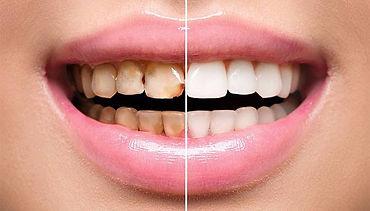 odontoiatria estetica.jpg
