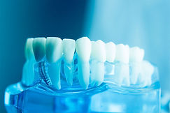 implanti-1024x683.jpg