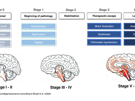 Stages of Parkinson's Disease