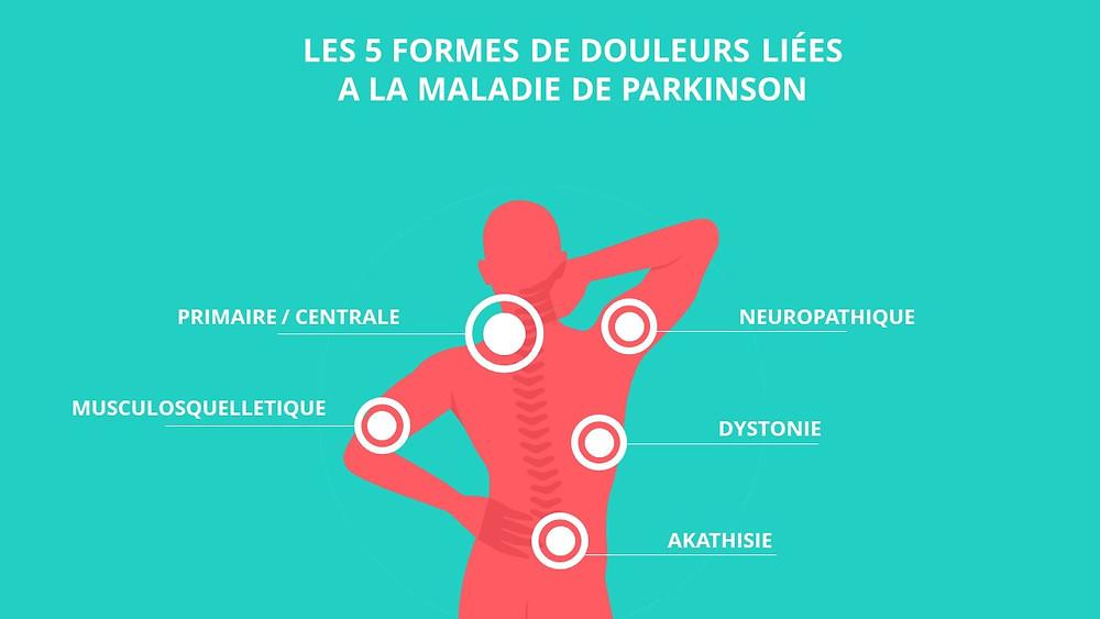 Comment traiter les douleurs dans la maladie de Parkinson ?
