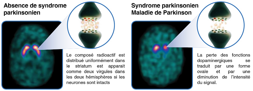 dat scan maladie de parkinson diagnostic