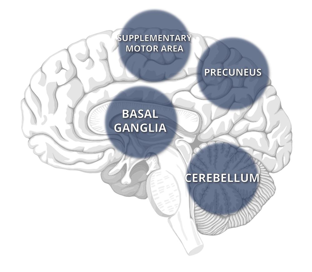 brain area freezing of gait parkinson disease