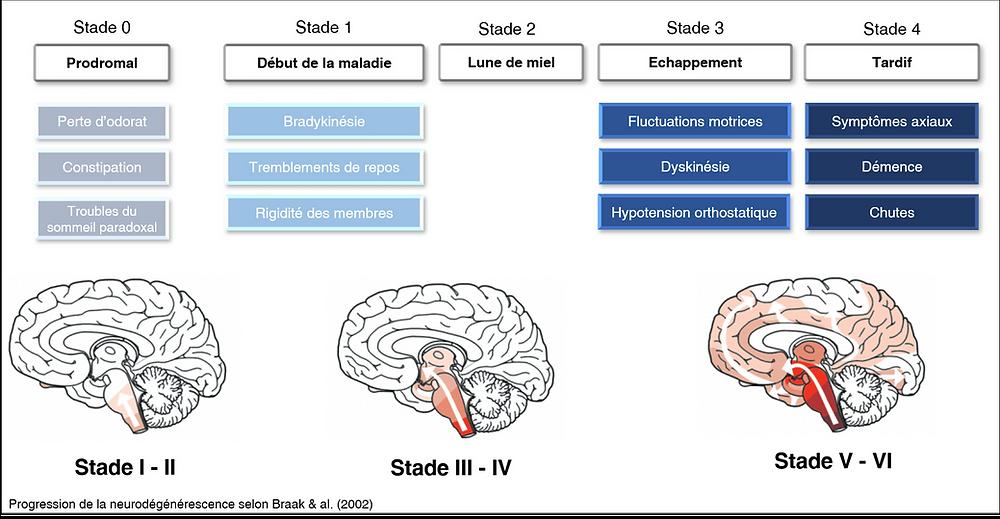 Quels sont les stades d'évolution de maladie de Parkinson ?