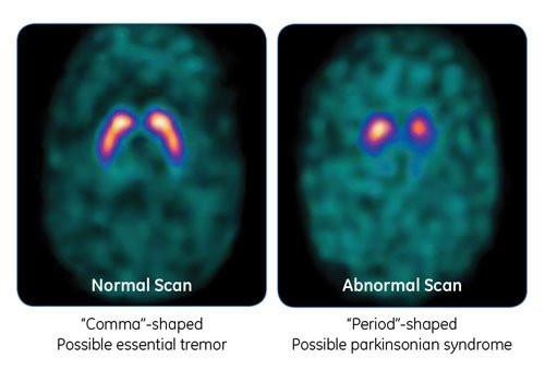 dat scan maladie de parkinson diagnostic