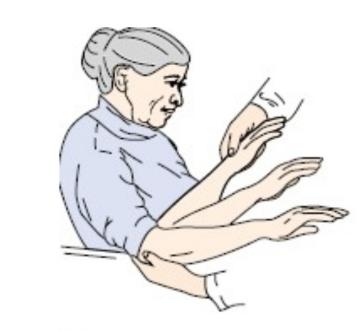 Les symptômes moteurs dans la maladie de Parkinson