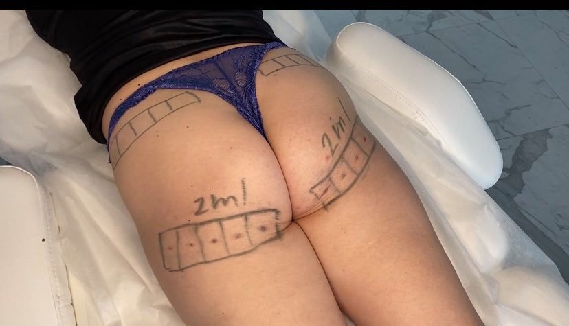 Brazilian butt botox