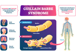 Guillain-Barré Syndrome from Flu Vaccine