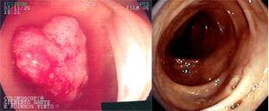 cancerintestinal_01-300x124.jpg