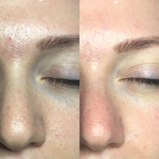 Best results in just one facial!