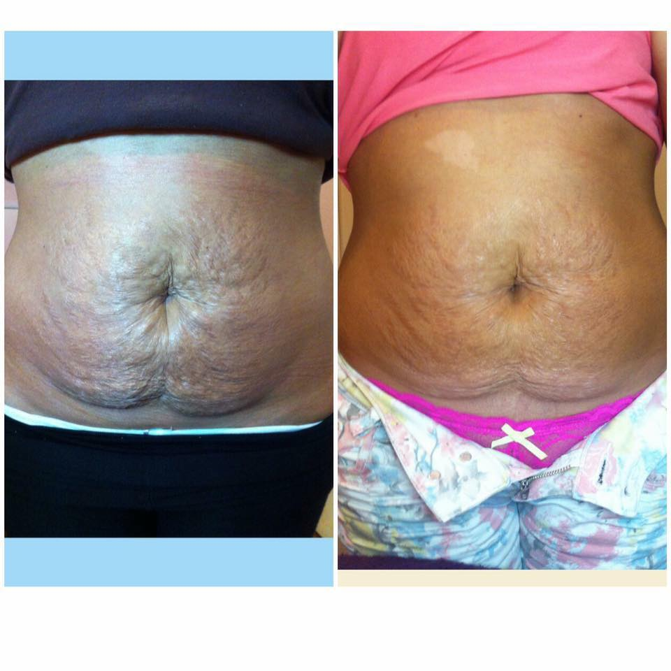 Derma rolling on Stretch Marks